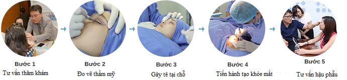 Phẫu thuật cắt khóe mắt77