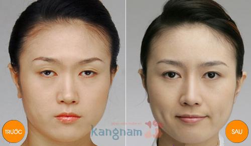 Kết quả chữa sụp mí mắt bẩm sinh tại Kangnam
