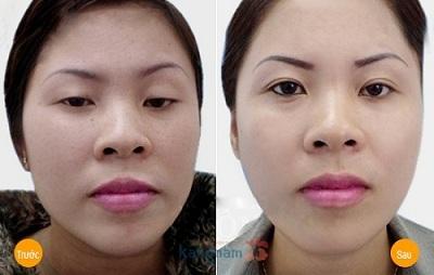 Chữa sụp mí mắt bẩm sinh ở mức độ nặng tại Kangnam