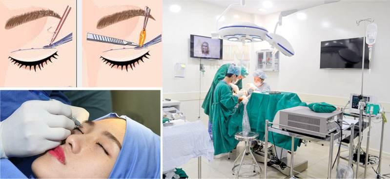 Mô hình phẫu thuật chữa sụp mí bẩm sinh tại Kangnam
