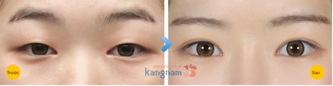 Kết quả thẩm mỹ mắt to tại Kangnam