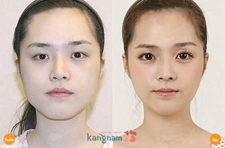 Phẫu thuật thẩm mỹ mắt to888