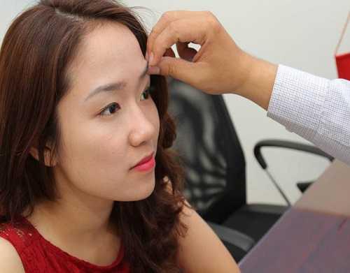 Phẫu thuật nâng cung lông mày