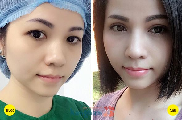 Chị Linda Zang chia sẻ có nên cắt mí mắt không?