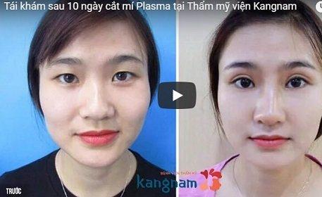 """Sự thay đổi """"xuấ sắc"""" của đôi mắt sau mười ngày cắt mí Plasma tại Kangnam"""