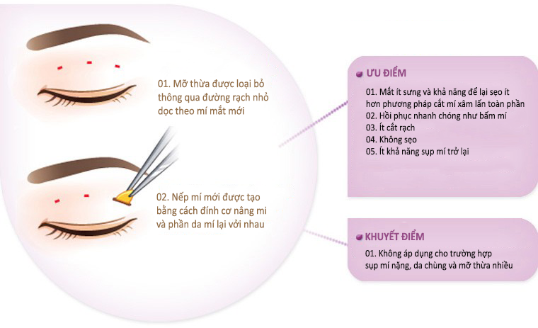 Cắt mí mắt mini có ưu và nhược điểm gì?