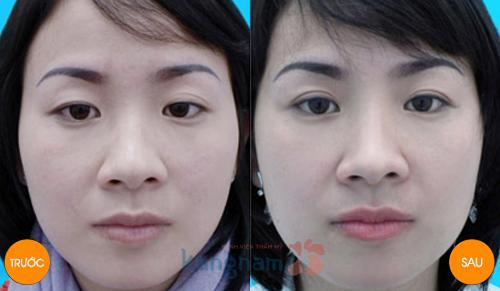 Kết quả cắt mí mắt mini tại Kangnam