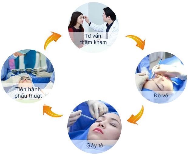 Quy trình cắt mí mắt mini như thế nào?