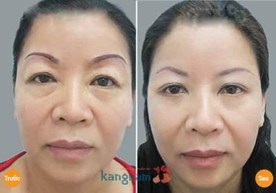 Khách hàng Kangnam trẻ trung hơn sau nâng chân mày có phun xăm