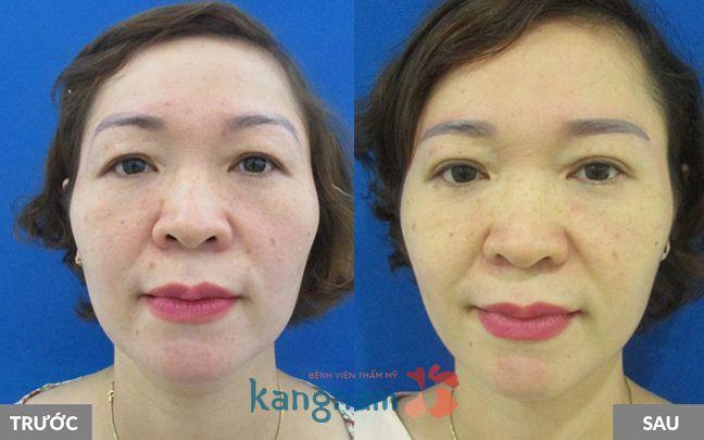 Kết quả nâng chân mày có phun xăm tại Kangnam