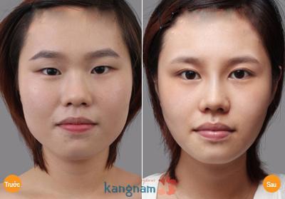 Kết quả tạo khóe mắt ngoài tại Kangnam
