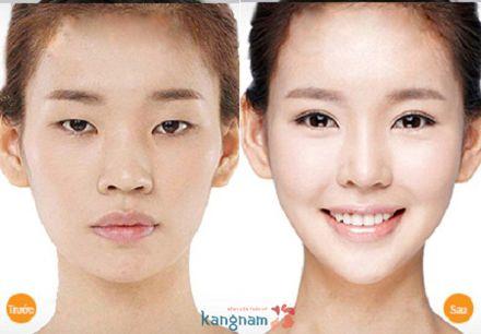Xinh đẹp hơn sau tạo khóe mắt ngoài tại Kangnam