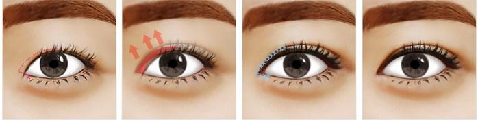 Phẫu thuật tạo khóe mắt trong giúp bạn có được đôi mắt to tròn hơn