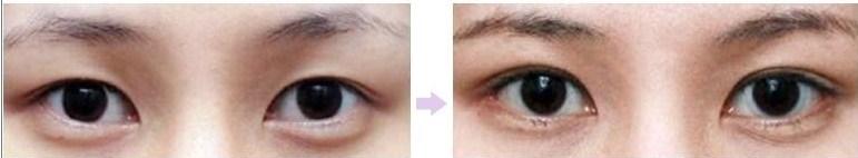 Khách hàng Kangnam chia sẻ kết quả tạo khóe mắt trong