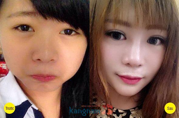 Hình ảnh khách hàng sau tạo khóe mắt trong tại Kangnam