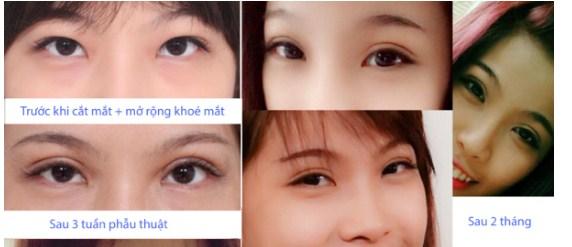 Kết quả khách hàng trước sau tạo khóe mắt trong