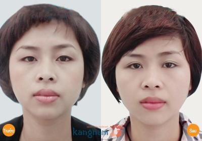 Hình ảnh khách hàng Kangnam xinh đẹp hơn sau mở rộng góc mắt
