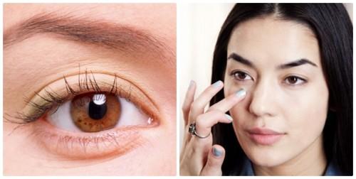 Chữa bọng mắt bằng tự nhiên liệu có hiệu quả không?