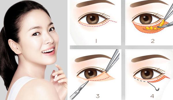Các phương pháp tự nhiên không đem lại hiệu quả trị bọng mắt
