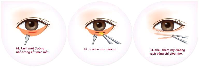 Cắt bọng mắt11