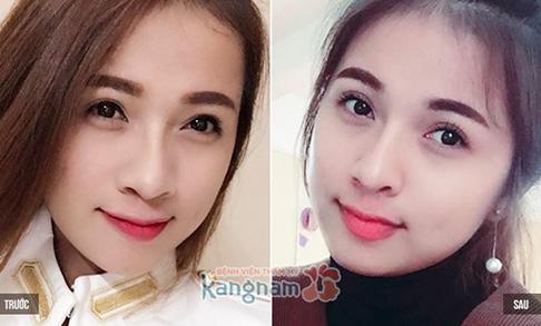 Bạn Thiên Hương chia sẻ có nên cắt mí mắt không?