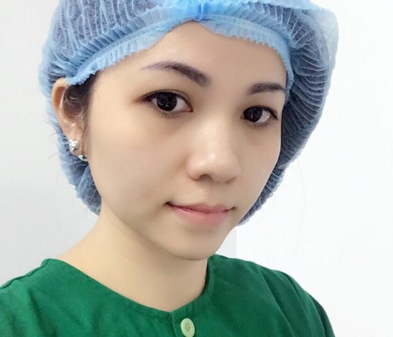 hình ảnh cắt mí mắt sau 1 tháng11