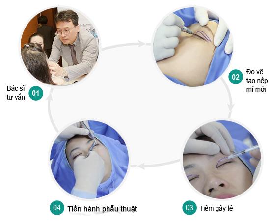 Phẫu thuật cắt mí mắt có hại không?777
