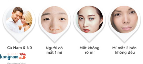 bấm mí Multi Point 4