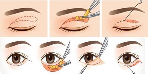 cắt mí mắt có ảnh hưởng gì không? 5