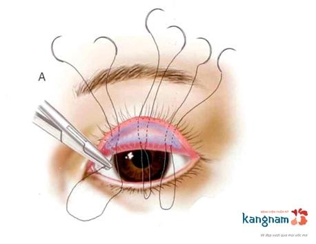 cắt mí mắt có ảnh hưởng gì không? 4