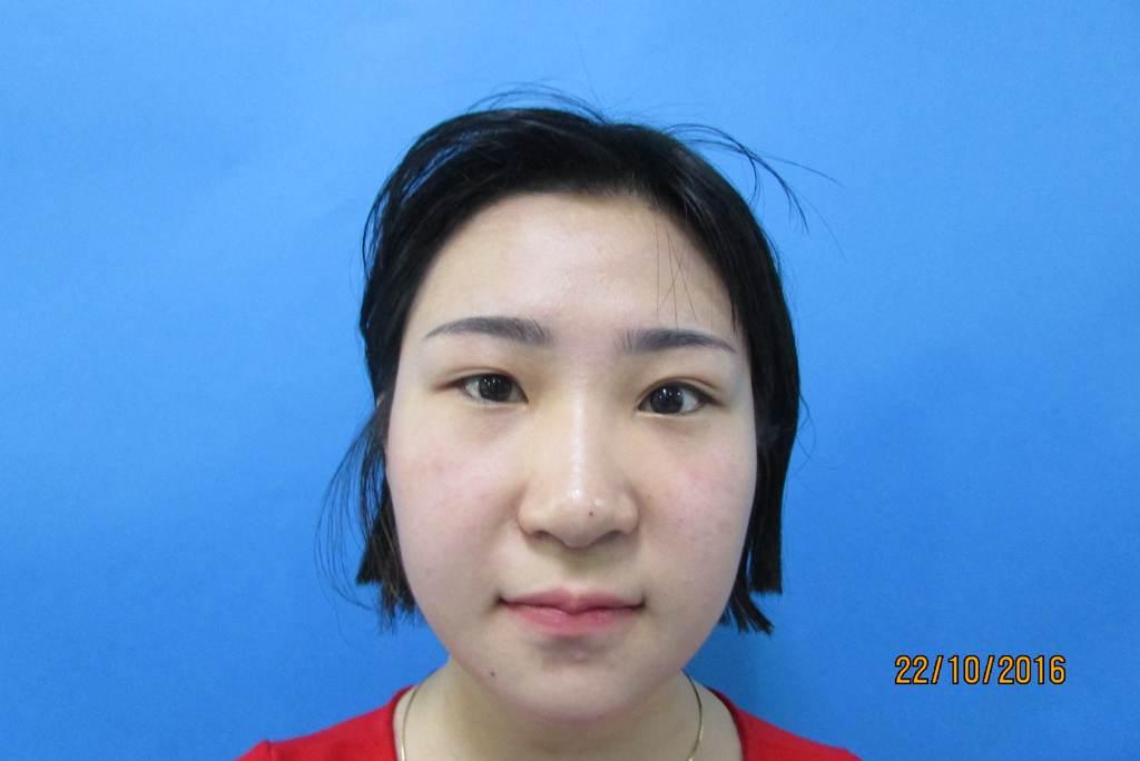 phẫu thuật mở rộng góc mắt ngoài1