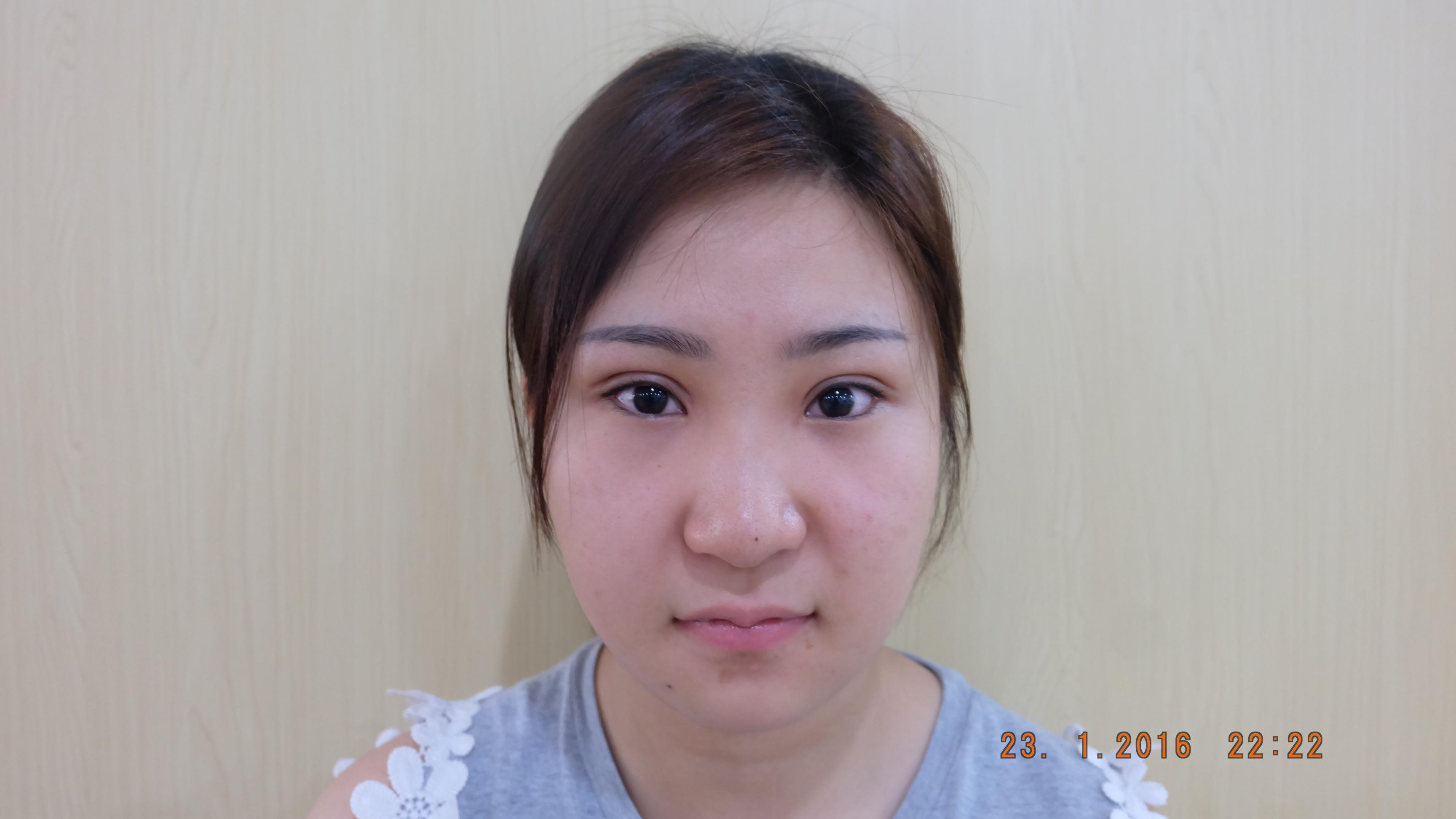phẫu thuật mở rộng góc mắt ngoài8