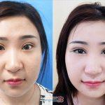 """Đôi mắt thay đổi đến """"khó tin"""" sau phẫu thuật mở rộng góc mắt ngoài"""