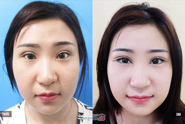 phẫu thuật mở rộng góc mắt ngoài6