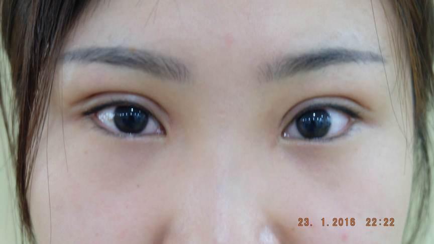 phẫu thuật mở rộng góc mắt ngoài778