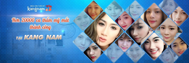 Hơn 20000 ca thẩm mỹ mắt thành công tại Kangnam