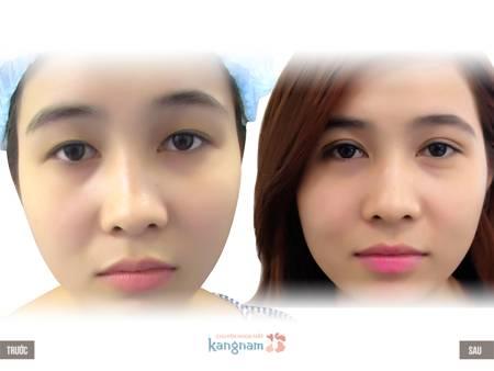 Hiệu quả chữa mắt sụp mí tại Kangnam