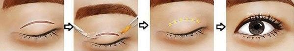 Cách chữa sụp mí mắt hiệu quả nhờ cắt mí