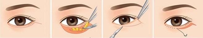 Quy trình cắt bọng mắt dưới tại Kangnam
