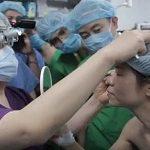 Chị em đổ xô đi cắt mí mắt trẻ ra 10 tuổi theo TRÀO LƯU MỚI