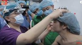 Phẫu thuật cắt mí mắt bao nhiêu tiền? Bảng giá cắt mắt 2 mí