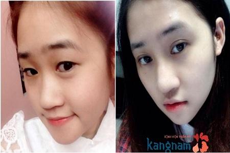 Hình ảnh bạn Tuyết Trâm trước và sau bấm mí mắt tại Kangnam