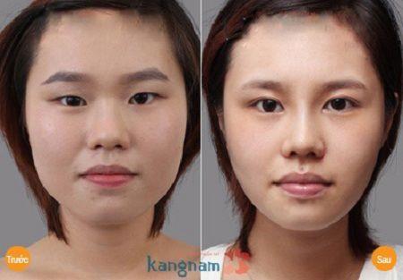 Thẩm mỹ mắt to - bí quyết để trở thành 1 trong những cô gái có đôi mắt đẹp nhất thế giới