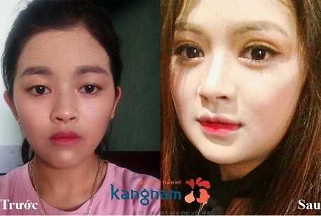 So sánh hình ảnh trước và sau cắt mí mắt 66
