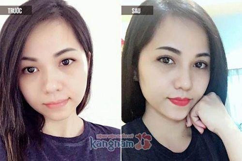 Chị Linda Zang chia sẻ cắt mí mắt ở đâu đẹp?