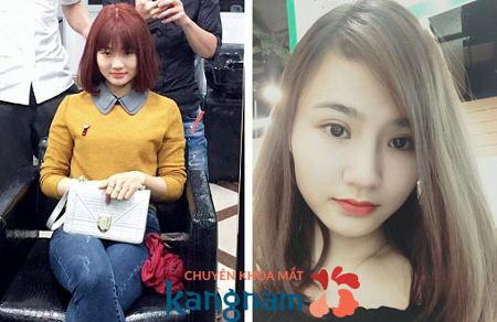Hình ảnh so sánh trước và sau khi cắt mí Plasma tại Kangnam3
