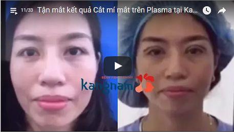 Đôi mắt khác biệt sau lấy mỡ mí mắt tại Kangnam