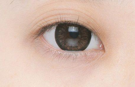 Mắt mí lót là gì? Làm sao để khắc phục?