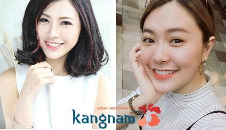 Hình ảnh so sánh trước và sau khi cắt mí Plasma tại Kangnam1
