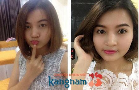 Hình ảnh so sánh trước và sau khi cắt mí Plasma tại Kangnam5
